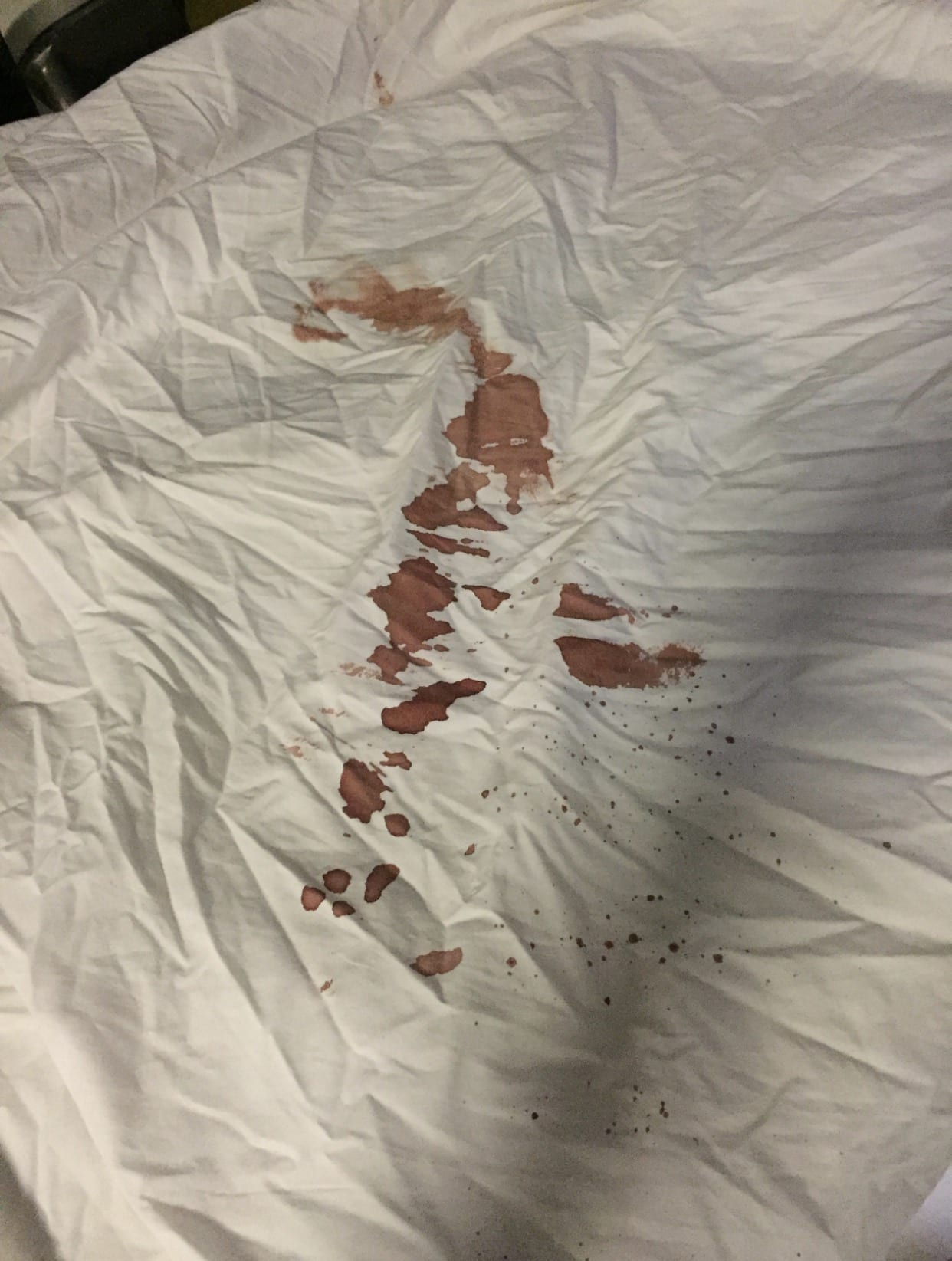 how to get rid of dried blood stains